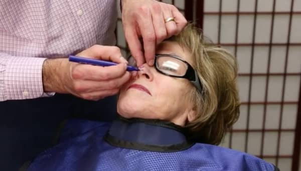man treating woman's face with IG-SRT